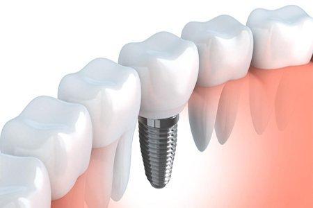 Implante Inmediato gandia