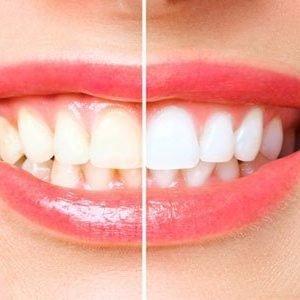 blanqueamiento dental tratamiento gandia