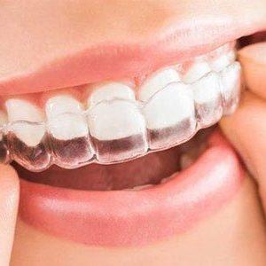 Ortodoncia Invisible Clinica Susana Fuster